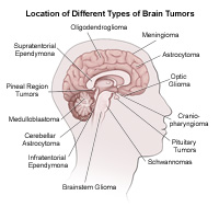 Location of different types of tumors